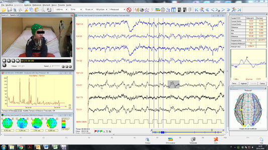 BRAIN QUICK - EEG Line